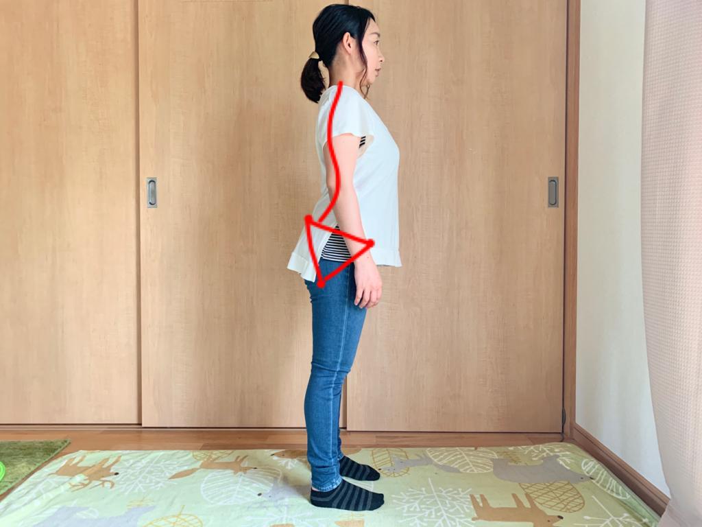 骨盤前傾している反り腰
